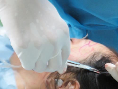 脂肪幹細胞注入(ステムセルリッチファット注入:SRF注入)手術