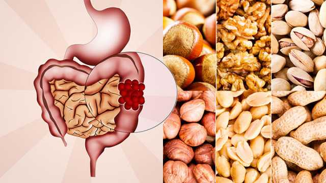 After Colon Cancer You May Eat Nuts