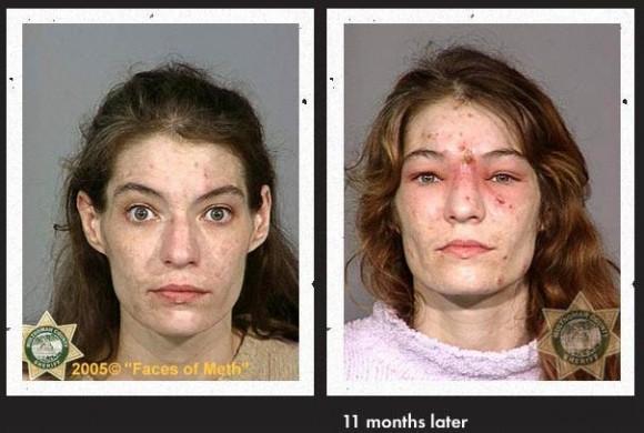 Faces Of Meth 15