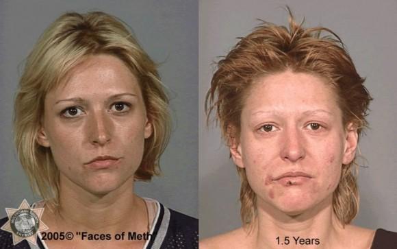 Faces Of Meth 5