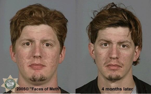 Faces Of Meth 6