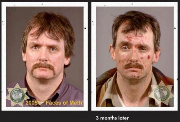 Faces Of Meth 9