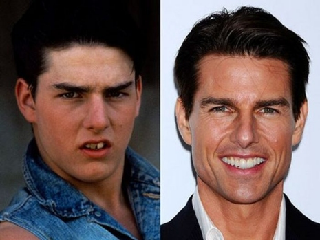 Celebrity Teeth Then & Now 1