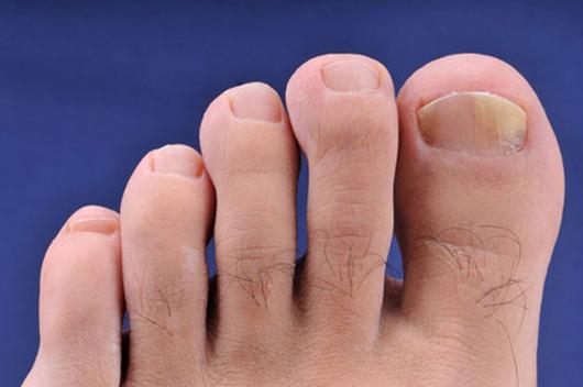 Лечение грибка ногтей ног в домашних условиях. Грибок ногтей