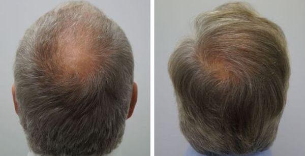 haartransplantatie kruin man