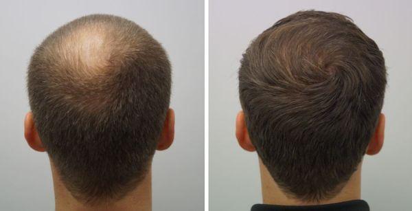 beste haartransplantatie, kale kruinhaartransplantatie kruin