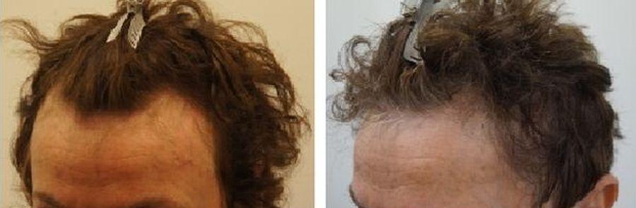 haartransplantatie voor en na vrouw