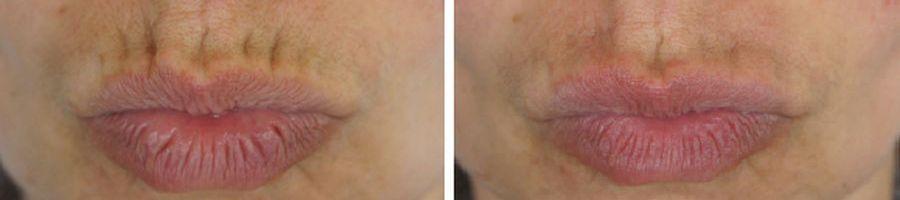 botox fillers rimpels boven de lippen voor en na