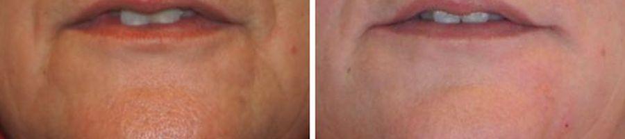 behandeling rimpels rond de mond marjonetlijnen met botox fillers voor en na