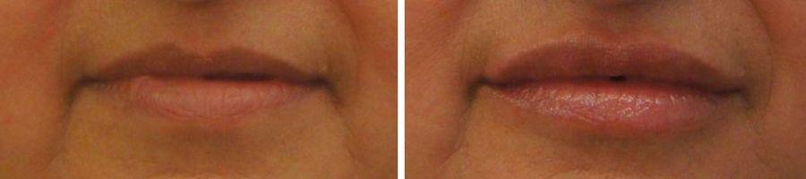 lipvergroting vollere lippen botox fillers voor en na