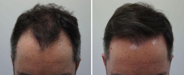 een natuurlijke haartransplantatie, FUE haartransplantatie