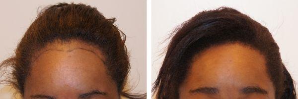 Haartransplantatie – kroeshaar- voor en na vrouw