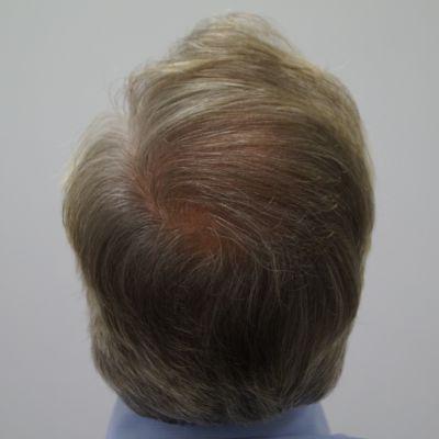 fb clinic wat kan ik verwachten van een haartransplantatie