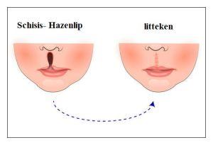 Verbeteren hazenlip litteken met snortransplantatie en Fillers