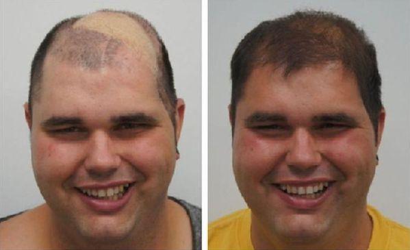 Haartransplantatie Freddie Jansen- resultaat na een sessie haartransplantatie