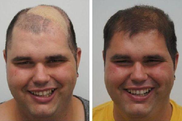 Haartransplantatie van Freddie Jansen bij FB clinic