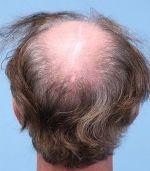 haartransplantatie bij litteken,Littekens na hoofdhuid reductie