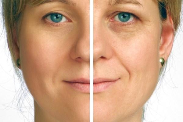 Rimpelbehandeling- Botox en Fillers
