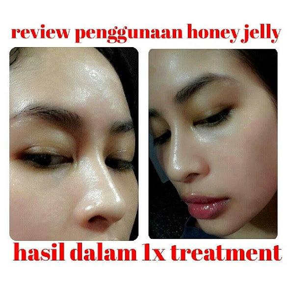 testimoni honey jelly