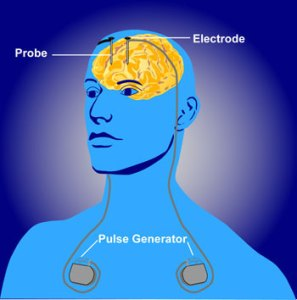 Deep brain stimulation is one method of treating Parkinson's disease.