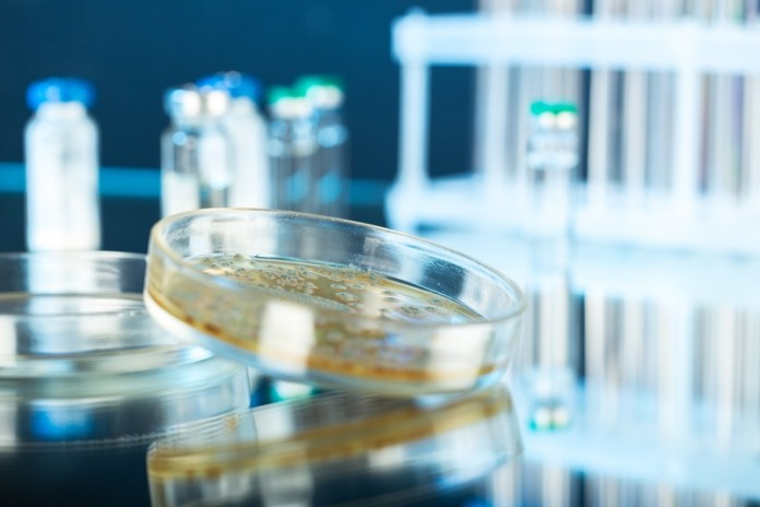 Boost for food safety as computer programme aids pathogen testing