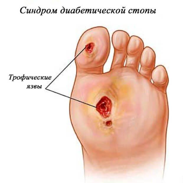 cât de mult este tratamentul cu varicoză varicoză pe picioare