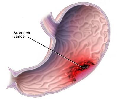 Gastric_Cancer (1)