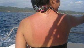 Sunburnbyjeanieforever
