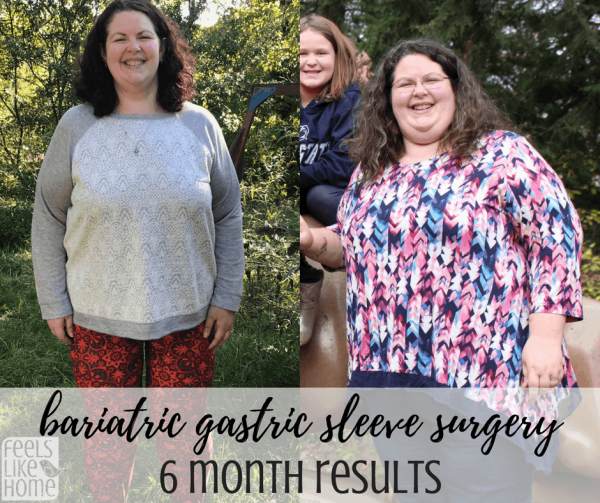Bariatric Gastric Sleeve Surgery Results 6 Months Post Op Feels
