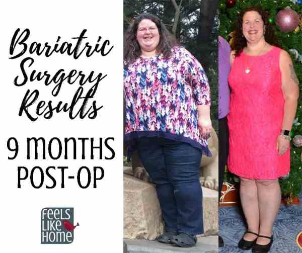 Bariatric Gastric Sleeve Surgery Update And Results 9 Months Post