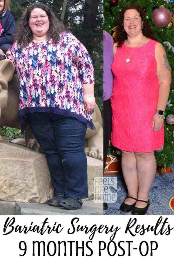 Tara Ziegmont posing for the camera before and after bariatric surgery