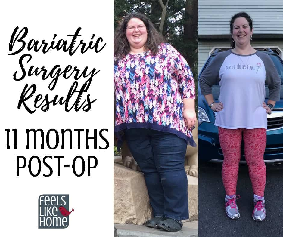 Bariatric Gastric Sleeve Surgery Update Results 1 Year Post Op