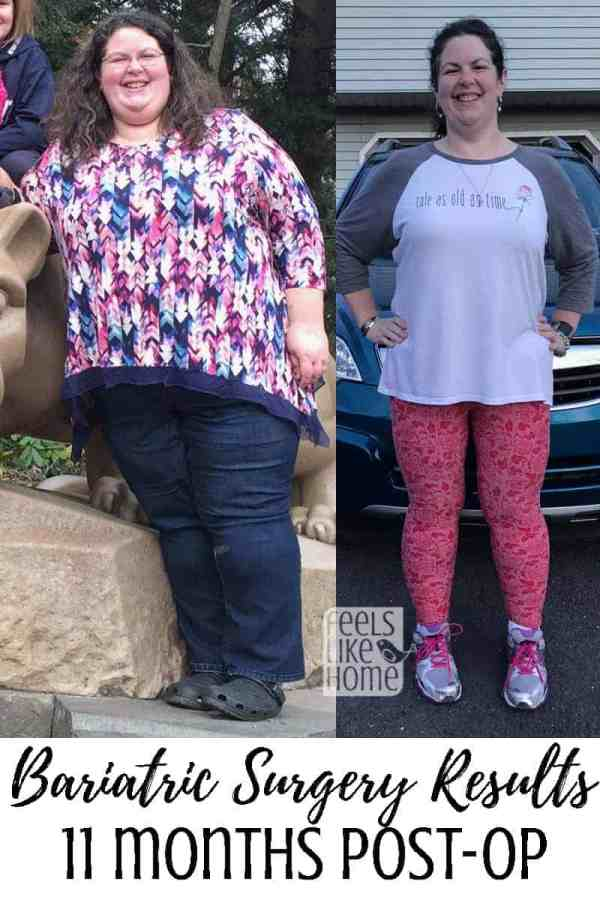 Bariatric gastric sleeve surgery results - This is an update 11 months after gastric sleeve surgery including before and after pictures (or is it before and during?). She is losing weight quickly and eating a healthy diet that she can maintain for life! She talks a lot about adjusting to her new body and how it feels to lose so much weight! Also discusses set backs and how they have affected her plan.