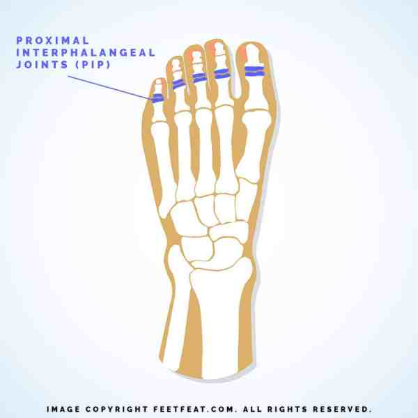 Proximal Interphalangeal Joints