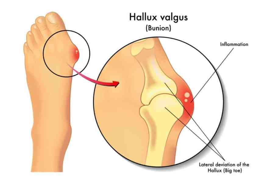 What is a Bunion - Hallux Valgus