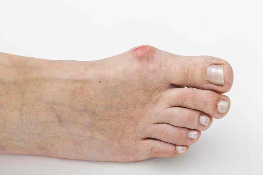 What is a Bunion - Inflamed Bunion