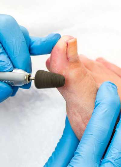 Medical Pedicure Step by Step