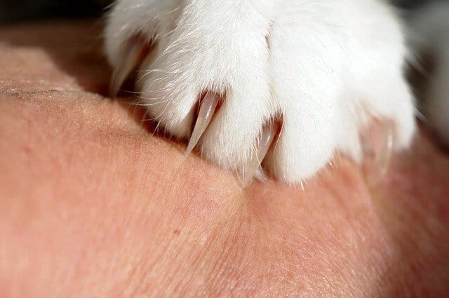 image of a cat claw scratching human skin