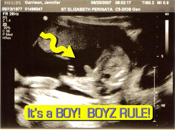 its-a-boy.jpg