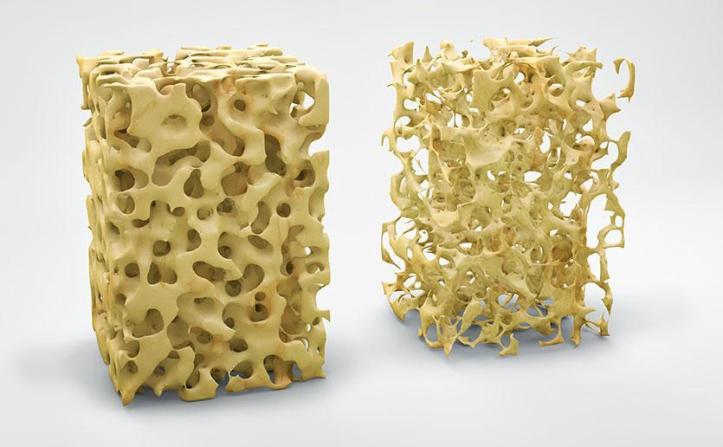 Normal vs Osteoporotic Bone