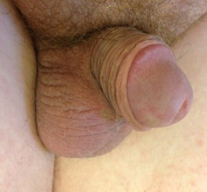 tiny penis picture