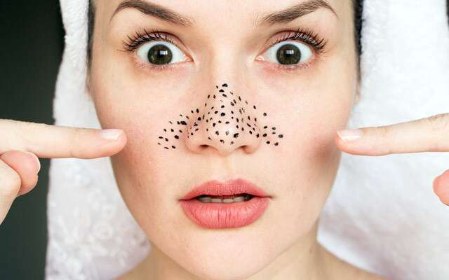Honey Cleanses Pores And Removes Blackheads