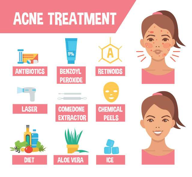 General Remedies, Tips and Tricks to Treat Acne