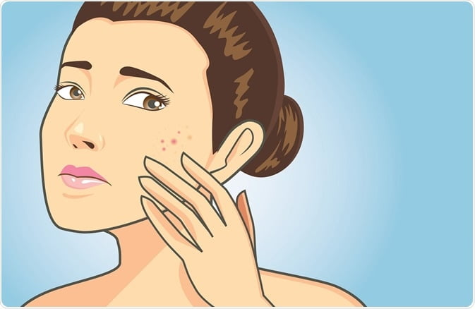 Could My Acne Be A Blessing In Disguise?