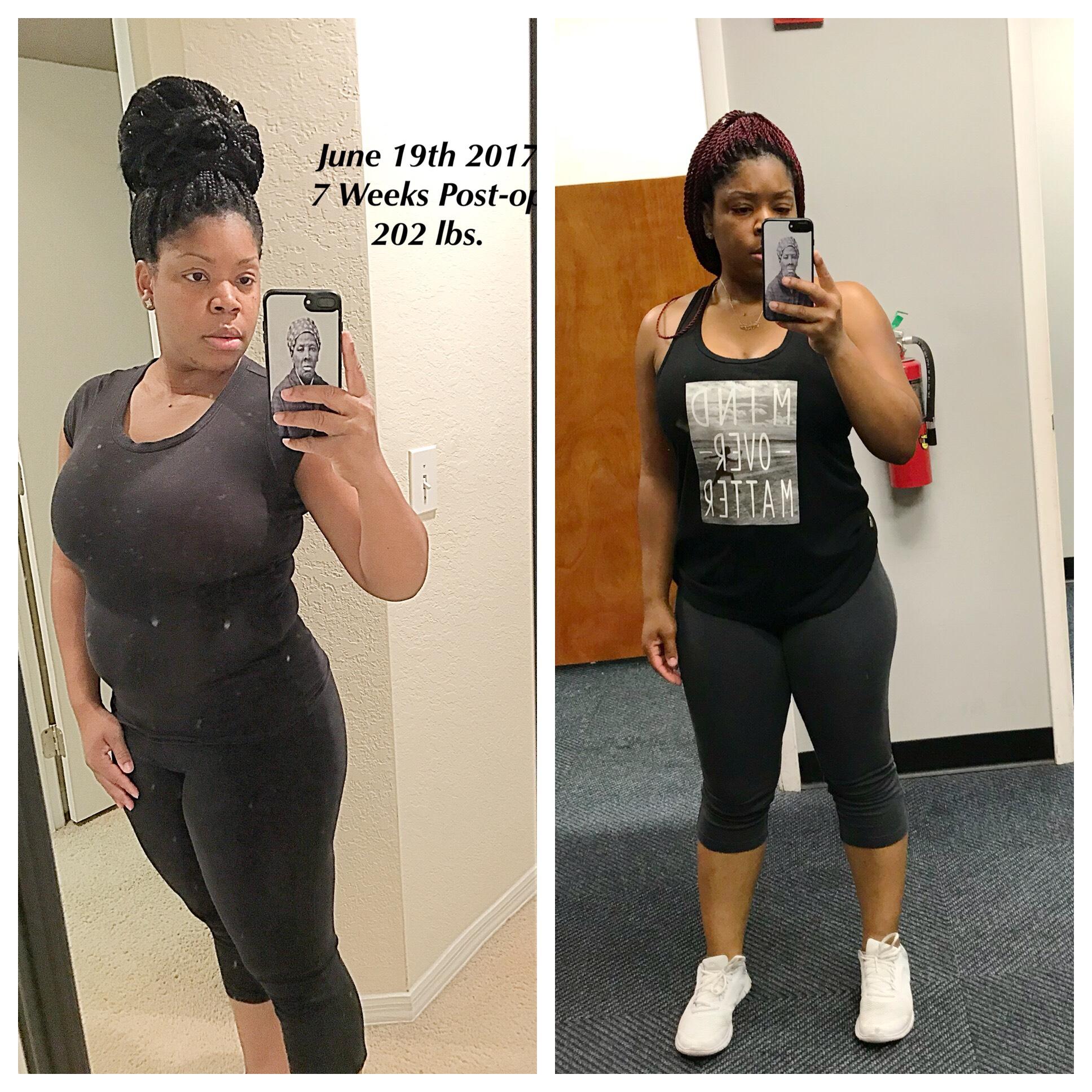 Shakayla #weightlossbeforeandafter #weightlosstransformation #weightlosstips