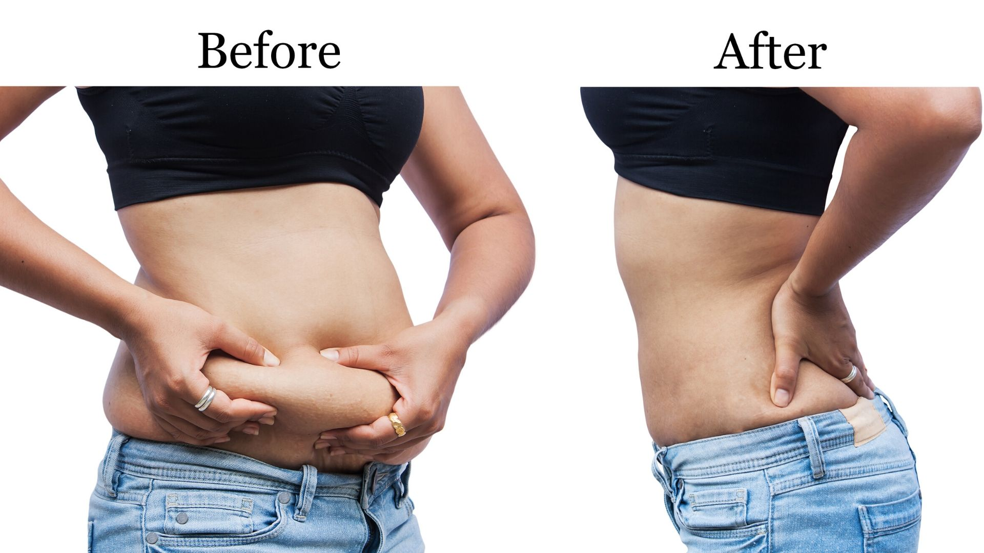 Hormonal belly fat