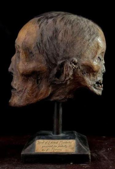 edward mordrake's skull