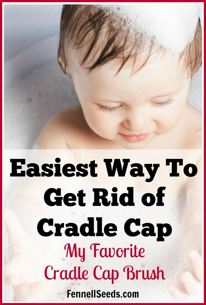 Cradle Cap | Cradle Cap Brush | How to get ride of Cradle Cap | My kids had terrible cradle cap. This cradle cap brush works awesome. I wasn't scared to use it on my baby because it has soft rounded rubber bristles. I used it every day for years.