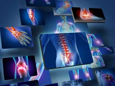 Image showing joint pain and injury x-rays