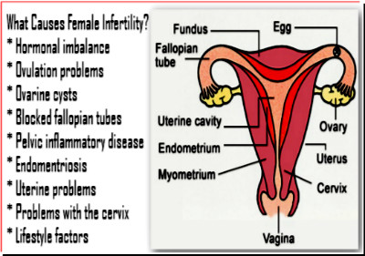 What Causes Female Infertility?